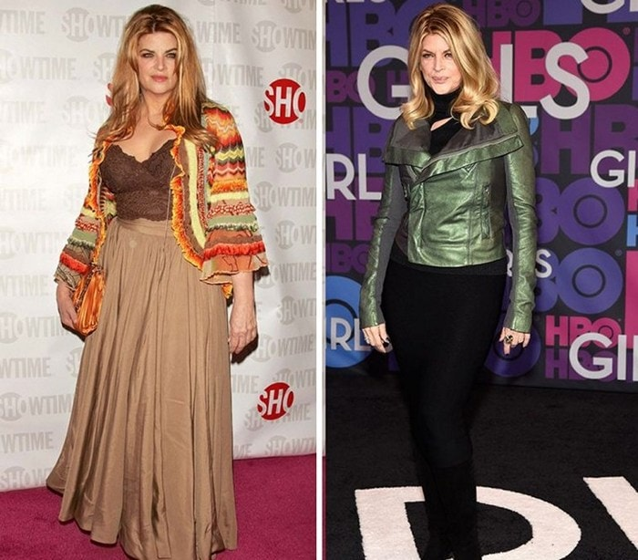 Celebrities Before And After Weight Loss (30 Pics)-21